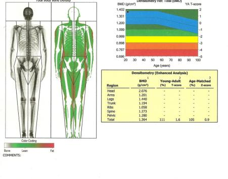 DEXA anonymous scan